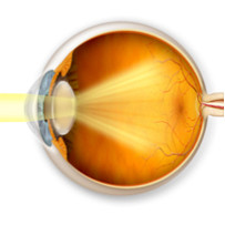 Cataract Surgery Services